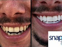 Виниры Snap-On Smile